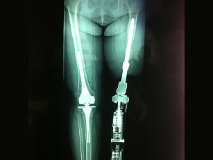 Osseointegration Xray Photo source: amputeeimplantdevices.com