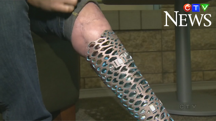 New kind of prosthesis