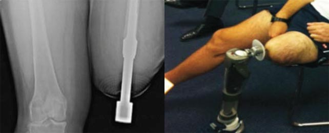Osseointegration – Now a reality