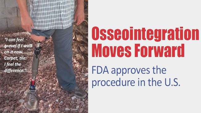 Osseointegration Moves Forward